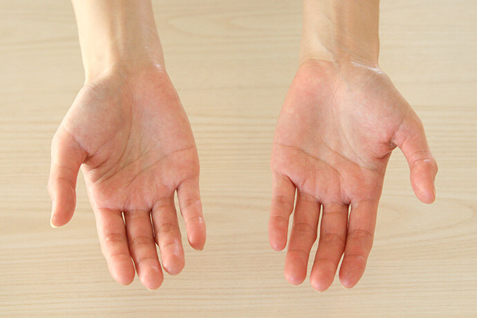 手荒れ・手の乾燥が潤い、健康な手を取り戻しました
